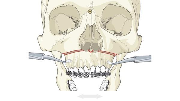 Этапы хирургического расширения зубного ряда