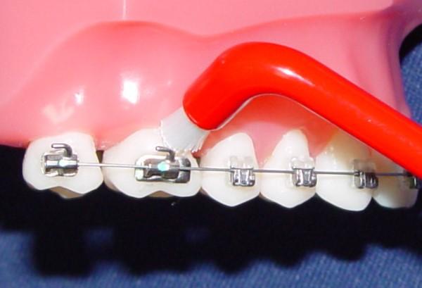 Рекомендации по использованию зубных щеток для брекетов