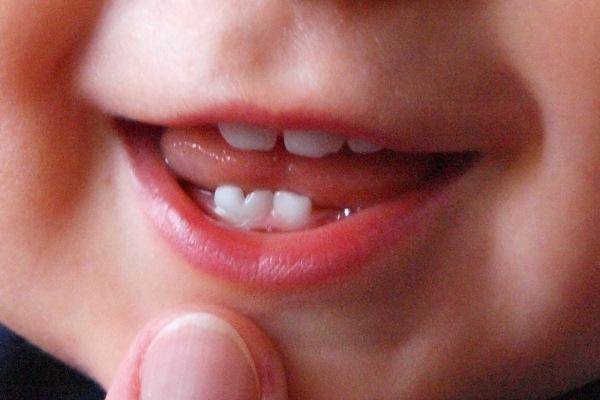 Как проявляются слившиеся зубы в молочном прикусе