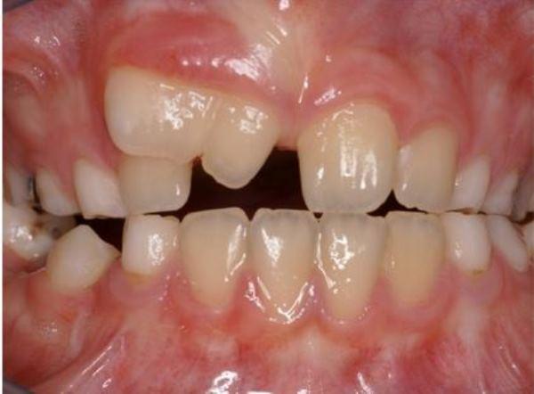 Что собой представляют слившиеся зубы