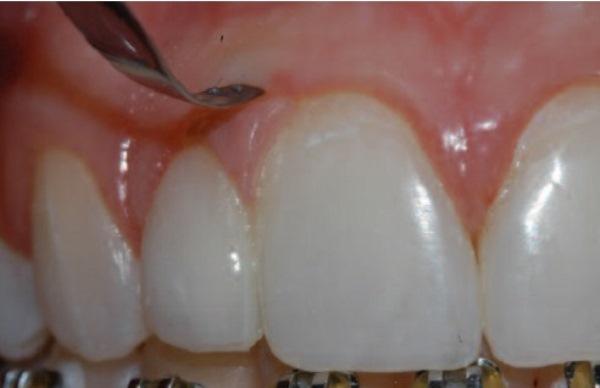 Этапы разделения слившихся зубов
