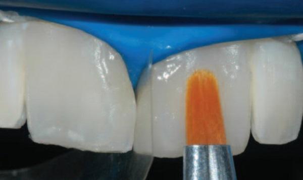 Методы лечения слившихся зубов