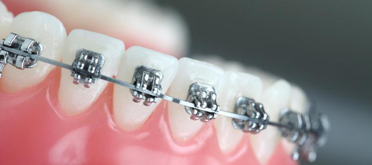 Признаки укорочения зубного ряда