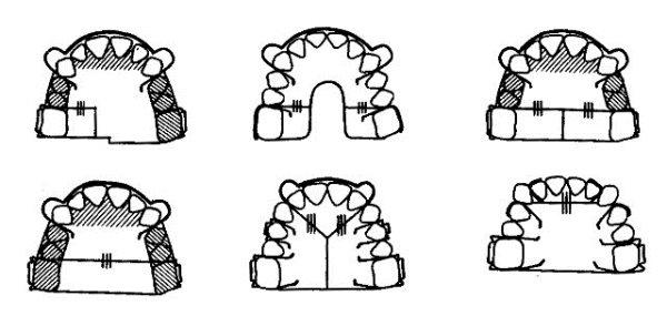 Какие съемные аппараты используют при укорочении зубного ряда