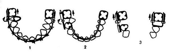Принцип действия несъемных аппаратов при укорочении зубного ряда