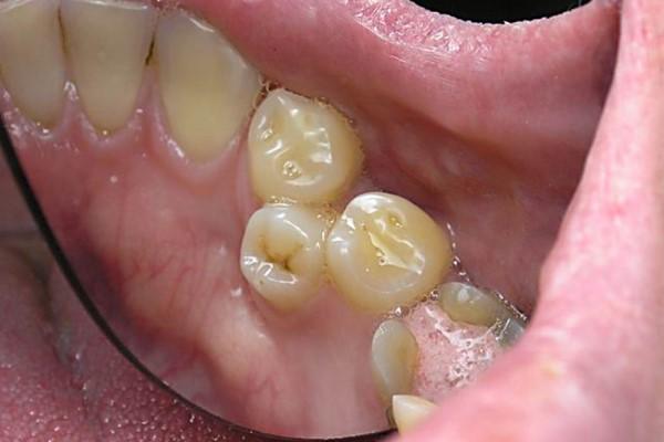 Возможные последствия укорочения зубного ряда