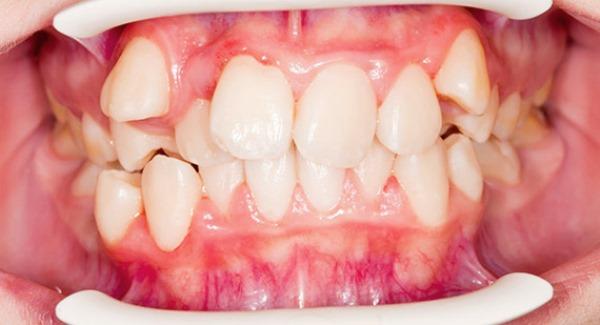 Клиническая картина при укорочении зубного ряда