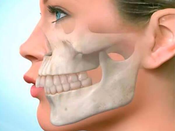 Лицевые изменения при укорочении зубного ряда