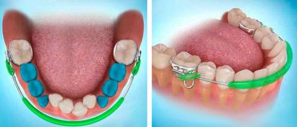 Методы лечения укорочения зубного ряда