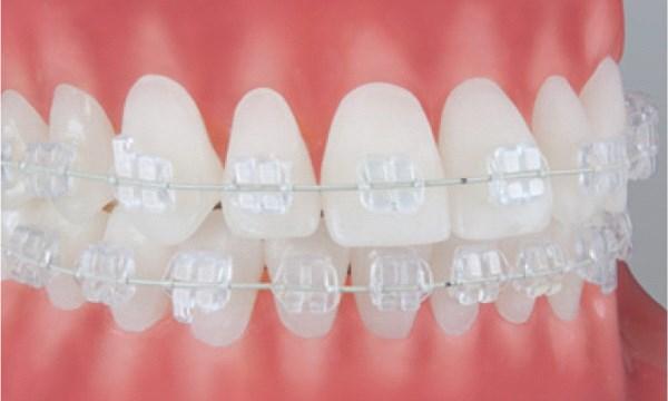 Как выглядят брекеты Pure на зубах