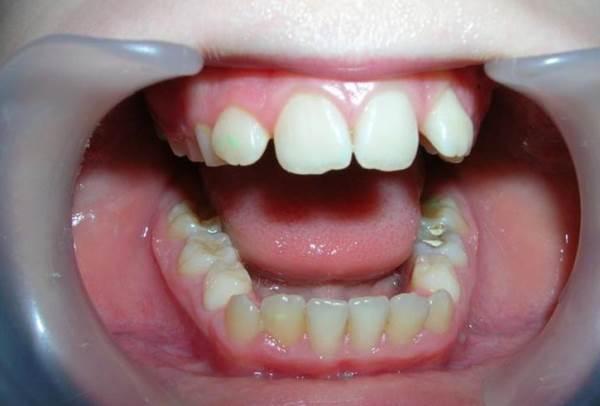 Признаки удлинения зубного ряда