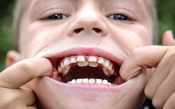 Возможные патологии при удлинении зубного ряда