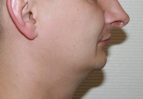 Внешние проявления удлинения зубного ряда