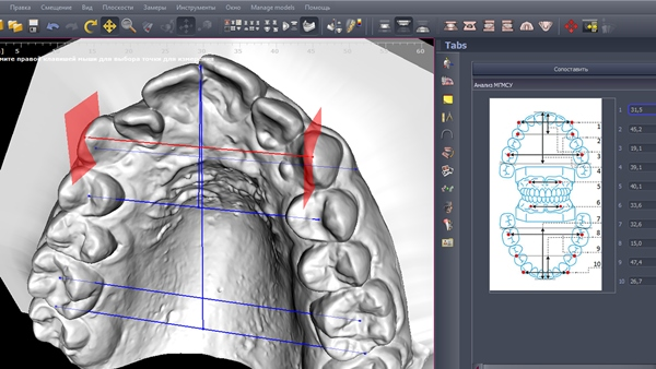 Методы диагностики удлинения зубного ряда