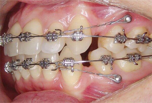 Способы лечения удлинения зубного ряда