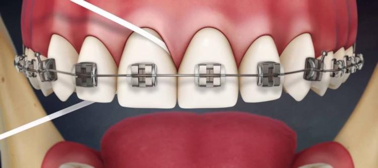 как пользоваться зубной нитью при брекетах чистка до блеска