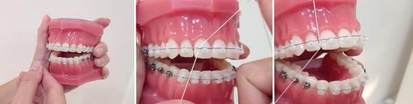 как пользоваться зубной нитью при брекетах