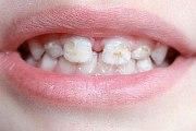 Лечение гипоплазии эмали зубов