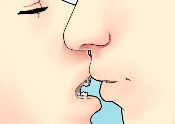 Брекеты на зубах – как можно целоваться