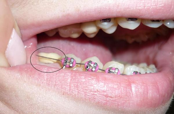 Ставить брекеты на коронки – можно ли, и какой результат лечения