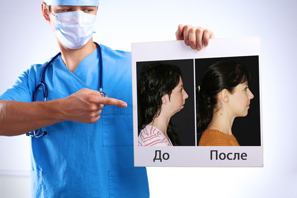 Ортогнатические операции фото до и после