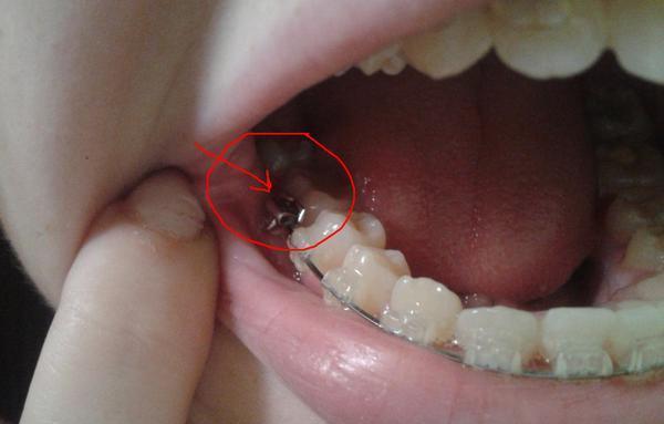 Почему и могут ли отклеиться брекеты на последнем зубе что делать