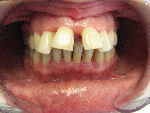 Протрузия зубов фото