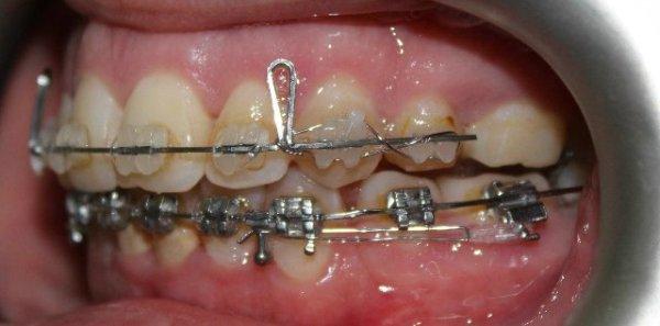 Протрузия зубов после брекетов