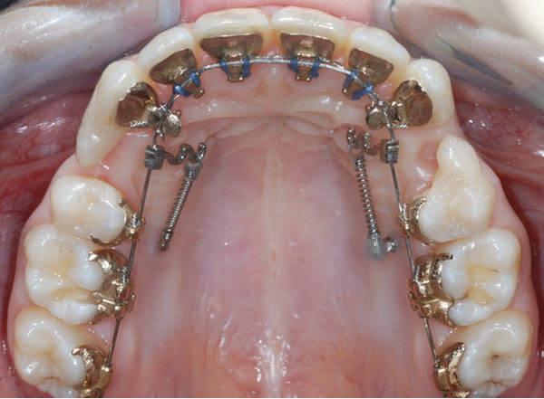Протрузия зубов лечение