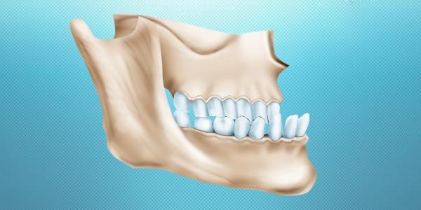 Последствия игнорирования лечения протрузии зубов