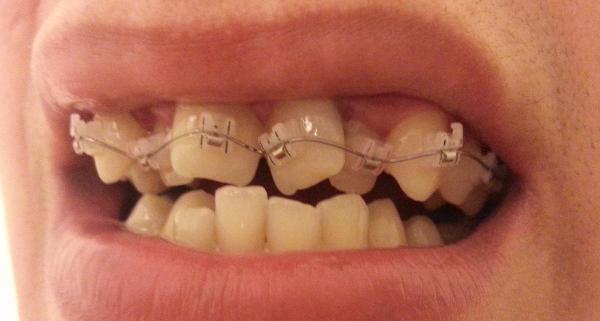Скученность нижних зубов лечение без брекетов