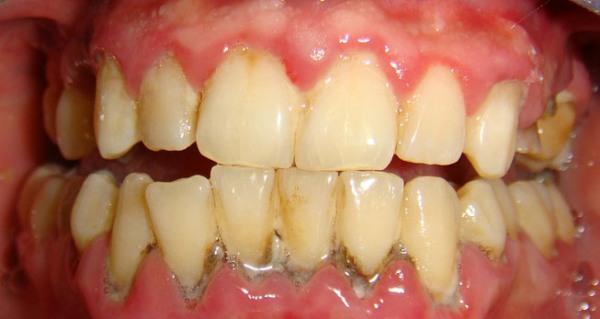 Скученность зубов нижней челюсти ортодонтия