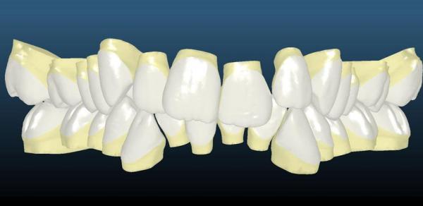 Скученность передних зубов называется