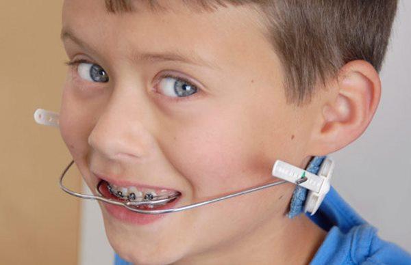 Кому показано лечение с использованием лицевой дуги