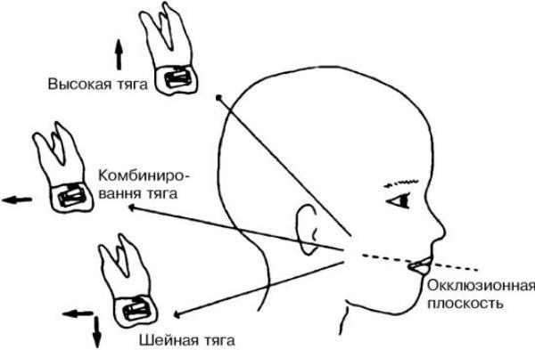 Способы фиксации ортодонтической лицевой дуги