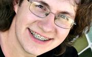 Сколько в среднем носят брекеты на зубах