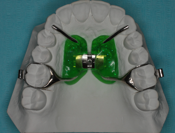 Ортодонтический аппарат pendulum pendex изготовление видео