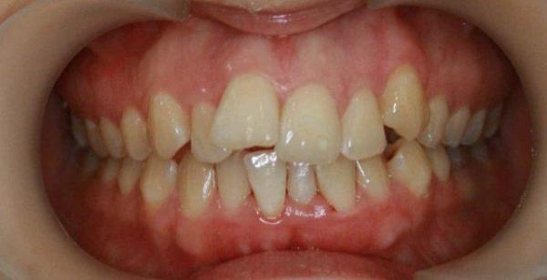 Аппарат пендулум ортодонтия