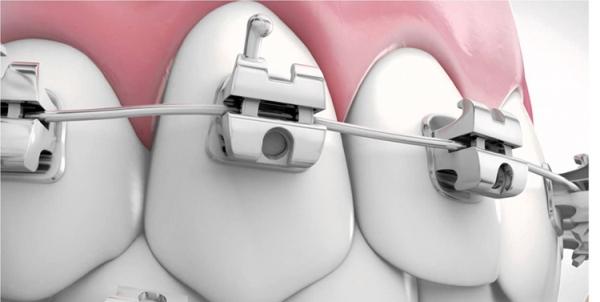 Брекет система orthos