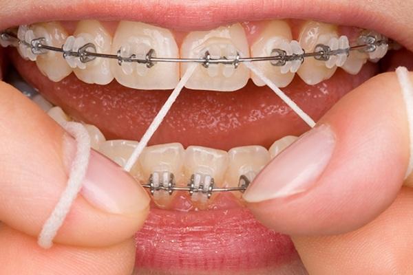 Нужно ли вырывать зубы чтобы поставить брекеты