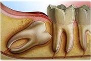 Ретенированные зубы что это