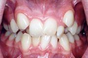 Лечение дистопии зубов