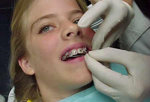 До скольки лет можно ставить брекеты на зубы взрослым