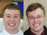 Фото до и после выравнивания зубов брекетами