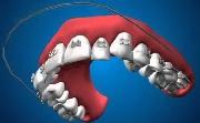 Как работают брекеты для зубов