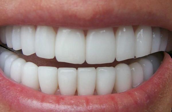 Причины развития кривой челюсти и ее коррекция