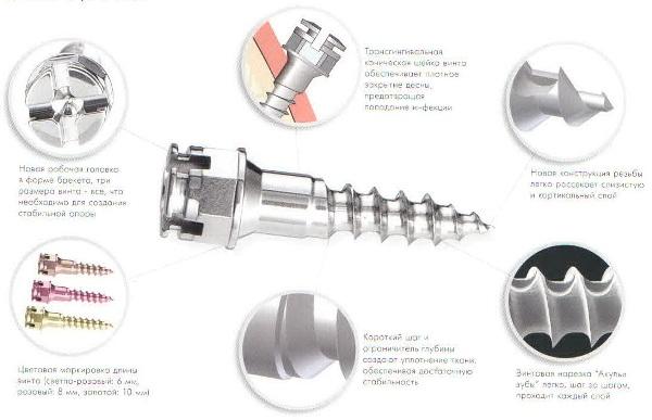 Ортодонтический мини имплантат