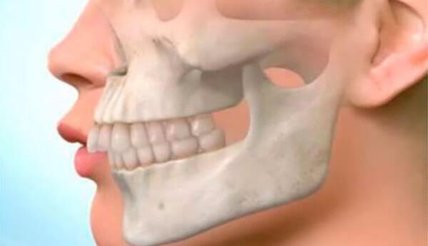 Причины развития и исправление маленькой нижней челюсти