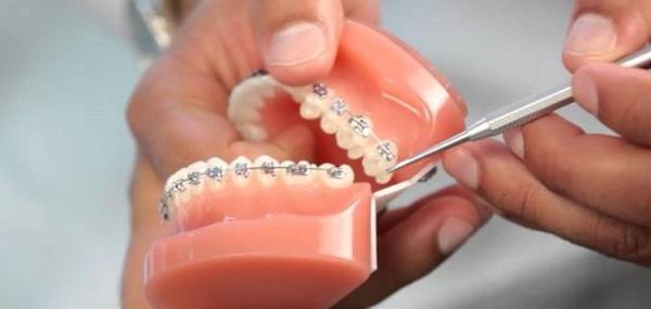 После установки брекетов шатается зуб