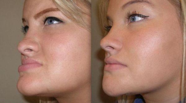 Почему кривая верхняя челюсть и как массировать